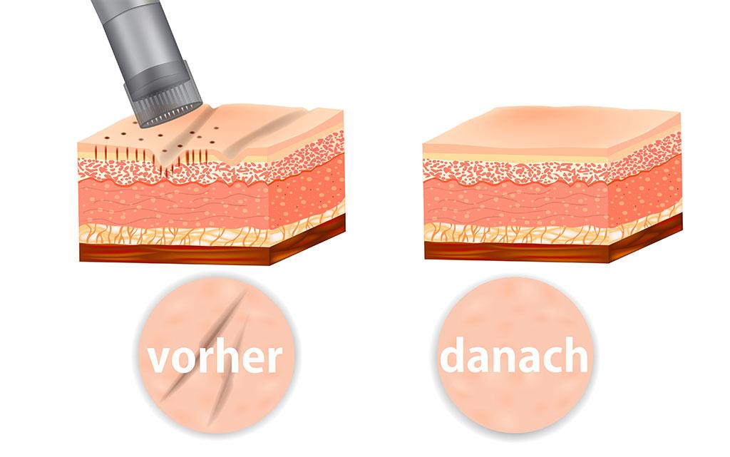Micro Needling von BABOR - Beauty Queen Kosmetikstudio in Höchstadt