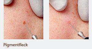Entfernung von Hautanomalien